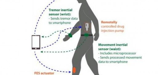 Wearable monitor for Parkinson's patients